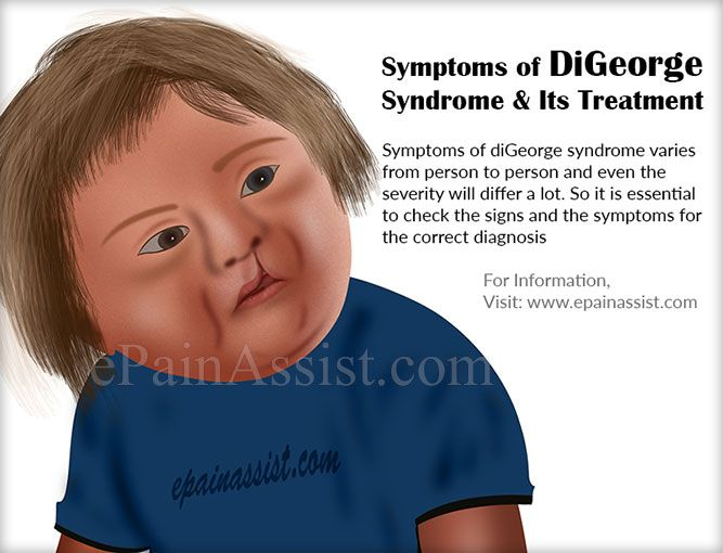 digeorge syndrome facies - photo #19