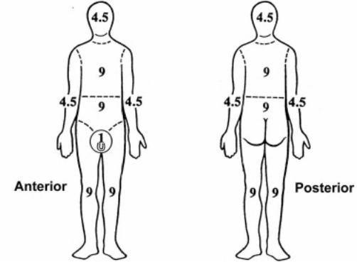 Rule of Nines- Nursing- Burns-TBSA
