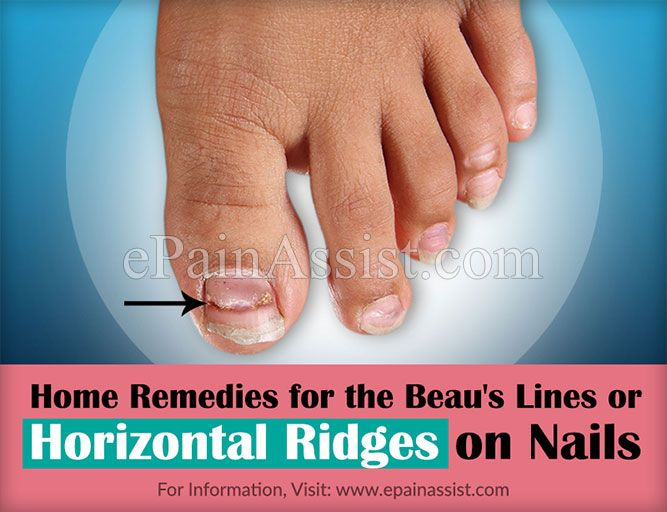 Treatment and Home Remedies for the Beau's Lines or Horizontal Ridges on Nails