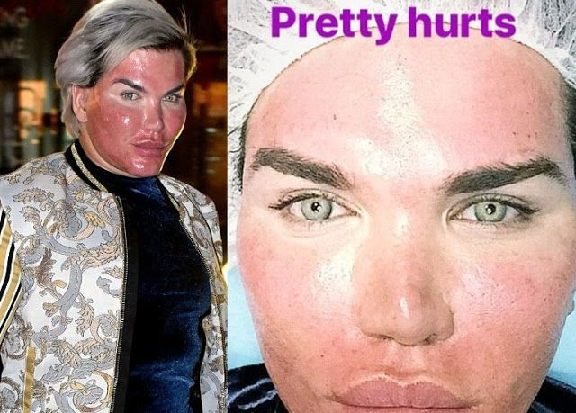 'My Face Is Burning!' Human Ken Doll Rodrigo Alves Says As He Shows Off Results Of His Chemical Skin Peel