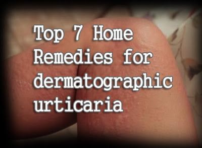 Top 7 Home Remedies for dermatographic urticaria
