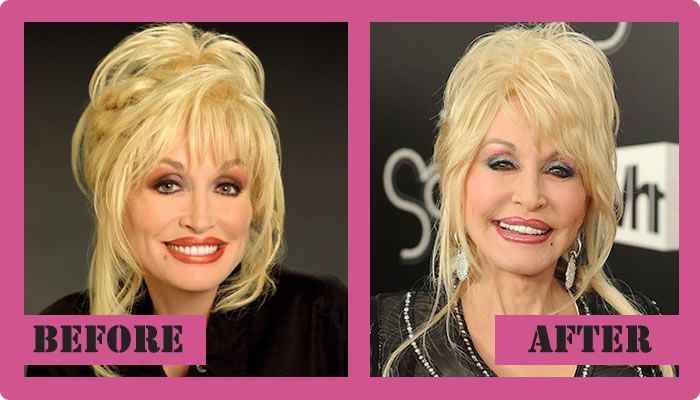 Dolly Parton Plastic Surgery Before And After Dolly Parton Plastic Surgery #DollyPartonPlasticSurgery #DollyParton #gossipmagazines