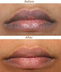 7 Proven Ways To Get Rid Of Dark Lips Naturally - Worked For 99% People Who…
