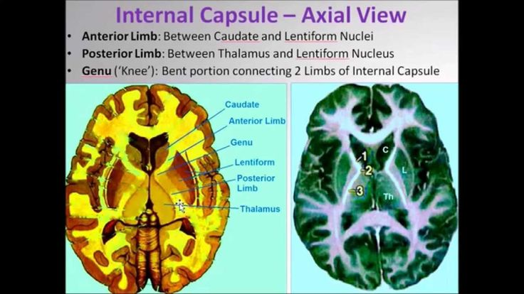 Image result for internal capsule brain