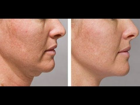 Learn Face And Jawline Rubbing Tactics To Shrink And Rejuvenate A Second...
