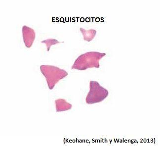 Descripción: fragmentos de eritrocitos debido a  la ruptura de dichas células en la circulación. Asociado a anemia hemolítica microangiopática  o macroangiopática y quemaduras extensas (Keohane, Smith y Walenga, 2013).