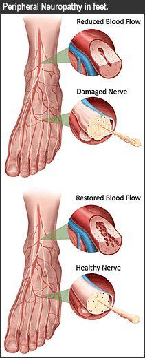 peripheral neuropathy in feet