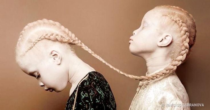 Magazino1: Αυτές οι δίδυμες αδερφές που γεννήθηκαν με αλμπινι...
