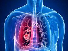 A tüdőrák figyelmeztető jelei, ami könnyen összetéveszthetőek egy makacs meghűléssel!
