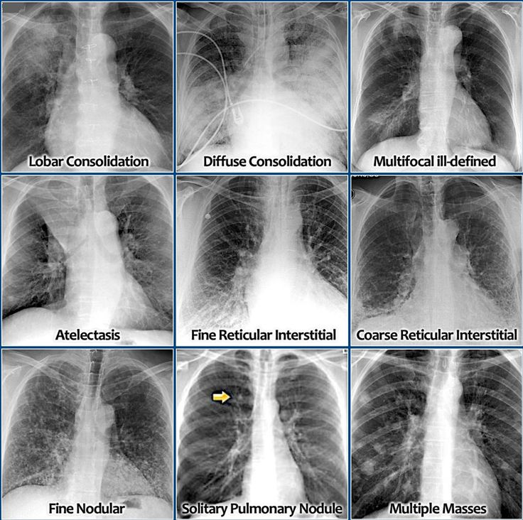 How to identify and differentiate lung diseases from chest x-ray..