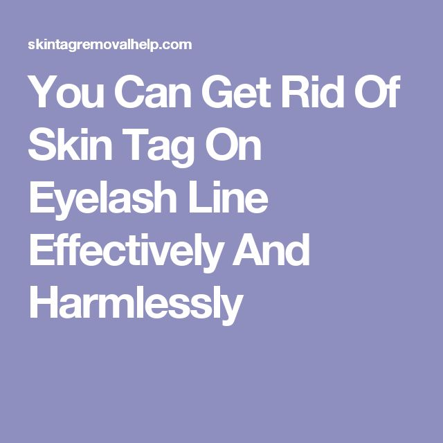 how to get rid of tags on your skin