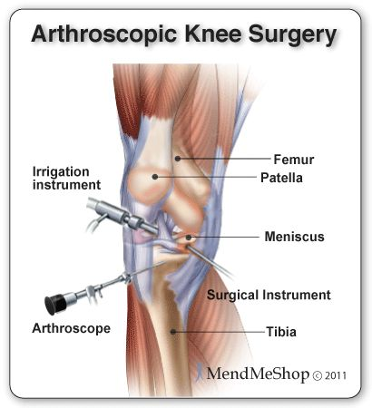 Arthroscopy is by far the most common procedure used when performing a knee surgery.