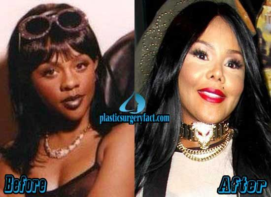 Lil Kim Rhinoplasty Surgery Before and After   http://plasticsurgeryfact.com/lil-kim-plastic-surgery-before-and-after-pictures/