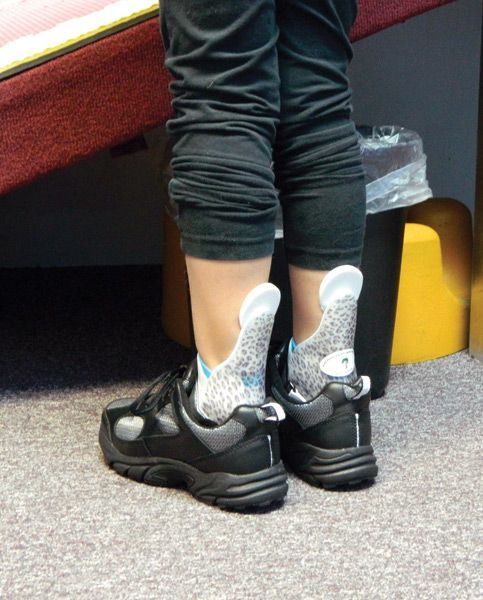 Quot Idiopathic Toe Walking Insights On Intervention Quot From