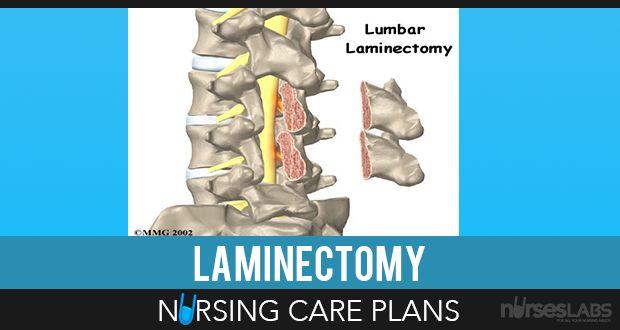 8 Laminectomy (Disc Surgery) Nursing Care Plans Care plans - care plan