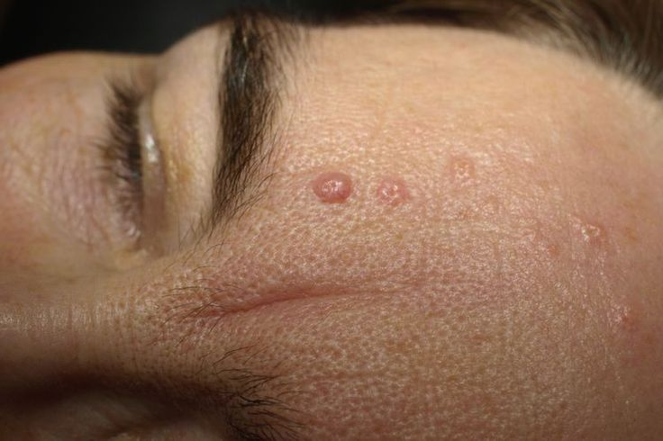 That Skin Growth May Not Be a Wart—It Might Be Seborrheic Keratosis