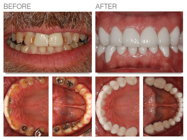 Delhi Dental Center is offering all the treatment related to dental problems. Contact us for #Full_Mouth_Dental_Implant in Delhi. Dr. Amit Goswami has vast experience in Dental Implant.   http://goo.gl/bCPJJu