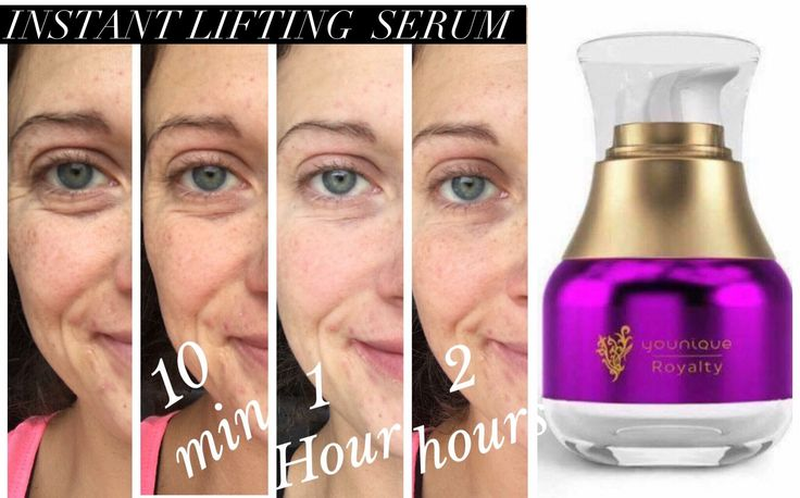 No, your eyes are not playing tricks. No, there's no editing. I know this gal and these are real results from Younique's Instant Lifting Serum, available September 15, 2016!  Get on my preorder list NOW!   Money back guarantee (but you're not going to need it!) Only $65 USD for six month supply of daily use. Contact me via my website at www.myglamgram.com