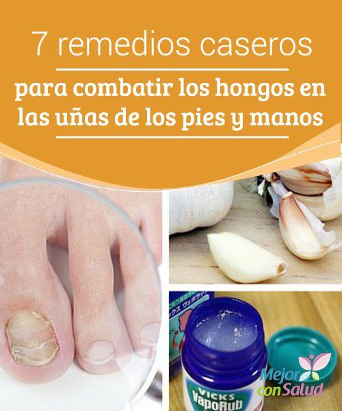 Las fases del hongo de las uñas en las manos