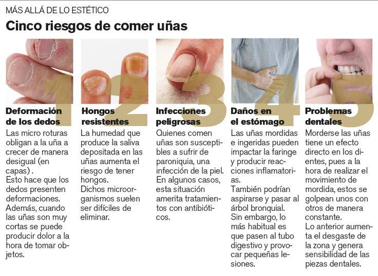 Como dejar de comerme las uñas | Decoración de Uñas - Manicura y Nail Art