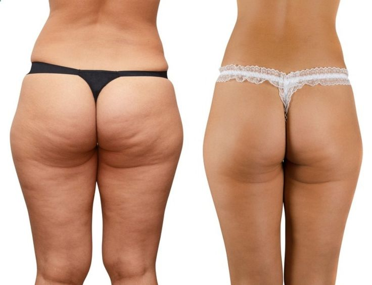 Truth About Cellulite