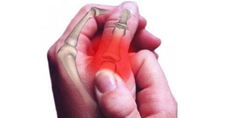 500.000 vyliečených dokazuje, že tento prvok je kľúčom k liečbe artritídy