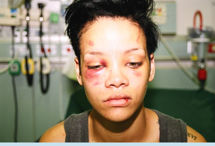"""Every Time Chris Brown Starts Whining """"Woe Is Me,"""" Take A Look At This Photo Of Rihanna 