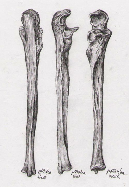 the 25+ best ulna bone ideas on pinterest | radius bone, radius, Human Body