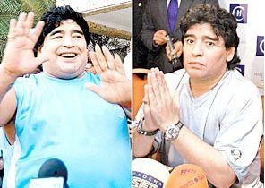 """Los pacientes con """"Cerebro de Gordo"""" no sienten mucho apetito al levantarse, casi no desayunan, pero en la tarde sienten una ansiedad incontrolable por comer. Aunque el Bypass gástrico disminuye de tamaño el estómago, es indispensable curar el """"Cerebro de Gordo"""". Maradona tenía más probabilidad de volver a engordar por su personalidad adictiva y especialmente por el incorrecto tratamiento cubano para adelgazar. Fallas del Tratamiento cubano para Adelgazar Después del Bypass gástrico…"""