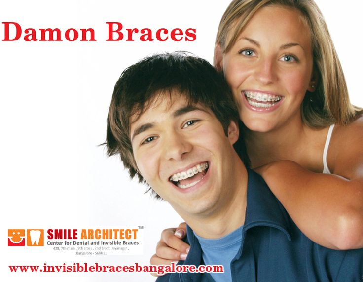 #DamonBraces have an advantage over traditional braces in the fact that they do not require rubber bands. Read more : http://goo.gl/Z9gh9G