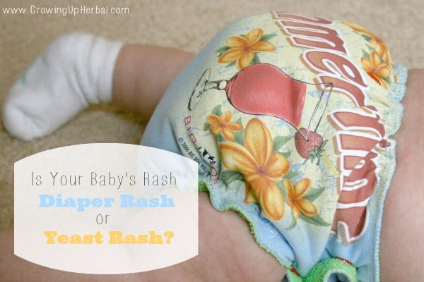 Have you ever wondered whether baby has a diaper rash or yeast rash? If so, learn the difference here as well as how to handle each naturally.