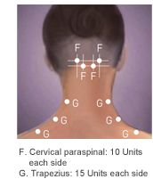 BOTOX® (onabotulinumtoxinA) for chronic migraine:  The approved dose for Chronic Migraine patients is 155 Units at 31 injection sites divided across 7 specific head/neck muscle areas. The recommended re-treatment schedule is every 12 weeks1  Cervical paraspinal: 10 units each side. Trapezius: 15 Units each side.