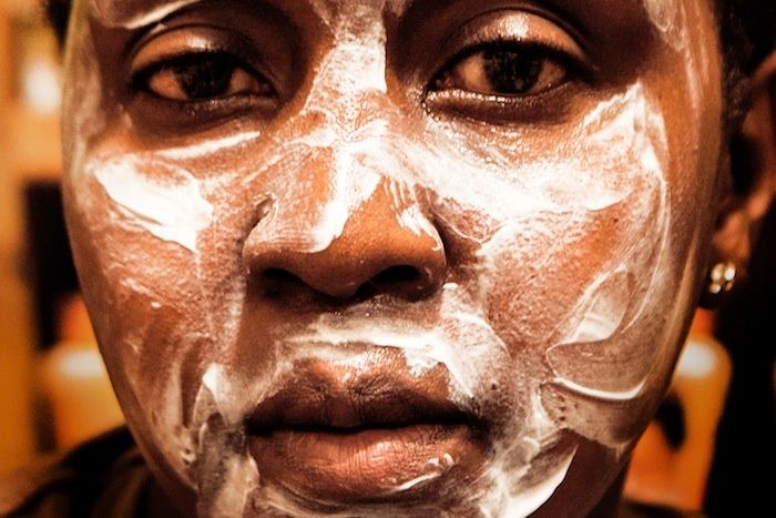 Rich Kenyans Are Injecting Themselves with Black Market Creams to Become White | VICE United States