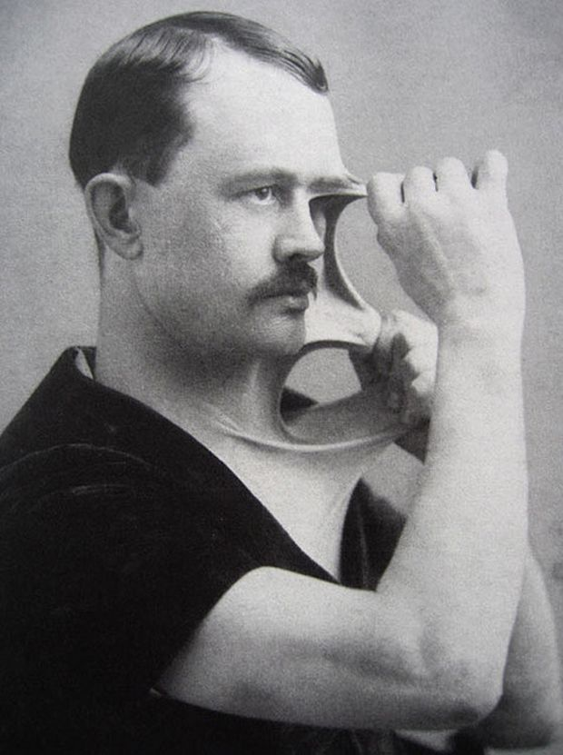c. 1900s: Man with stretchy skin