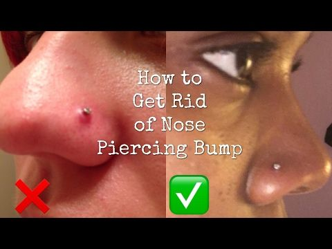 How to Get Rid of a Nose Piercing Bump FAST! | Alliah Andrea - YouTube