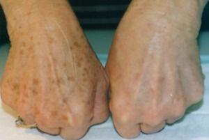 Een vlekkeloze huid