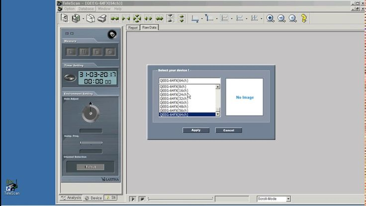 TeleScan Device Selection.  QEEG-64FX example