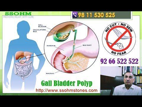 Gallbladder Polyp treatment, Gallbladder polyp causes and symptoms