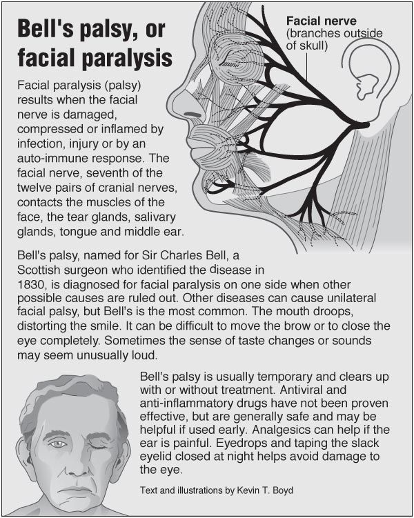 Bells' palsy, or facial paralysis