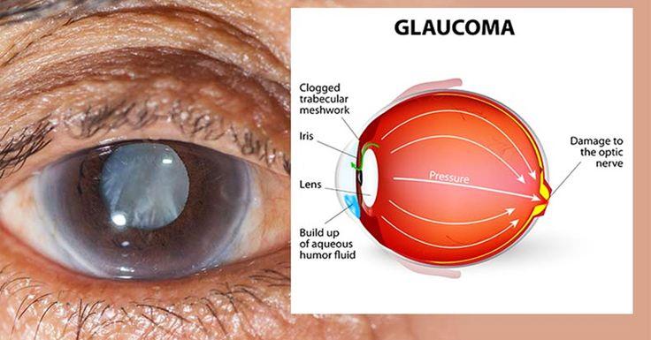 Используй целебную силу этой травы и вылечи 9 различных заболеваний глаз, в том числе катаракту! | Naget.Ru