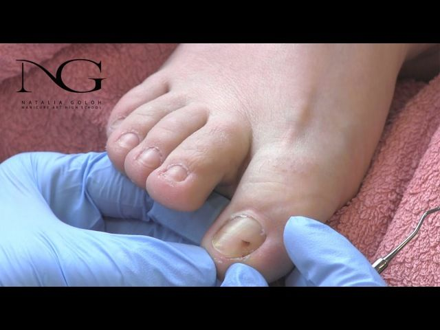 Коррекция вросшего ногтя. #nail #nailart #shellnail #гельлак #ногти #дизайнногтей #нэйларт