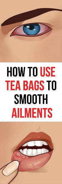 Try These 8 Tea Bags Uses For Health Benefits