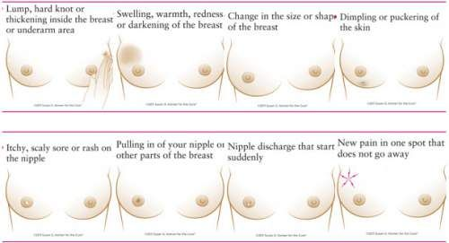 how to tell if your breast lump is cancerous