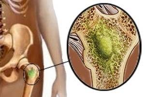 Qué es la osteomielitis | La osteomielitis es un proceso inflamatorio agudo o crónico de origen infeccioso que puede afectar a uno o más huesos. La mayor parte de los casos son consecuencia de una infección por bacterias, noobstante, la enfermedad también puede ser causada por hongos o virus. Hoy compartimos sus causas y factores de riesgo, los principales síntomas, cómo es realizado el diagnóstico y los tratamientos disponibles. Lee más: https://saludtotal.net/que-es-la-osteomielitis/
