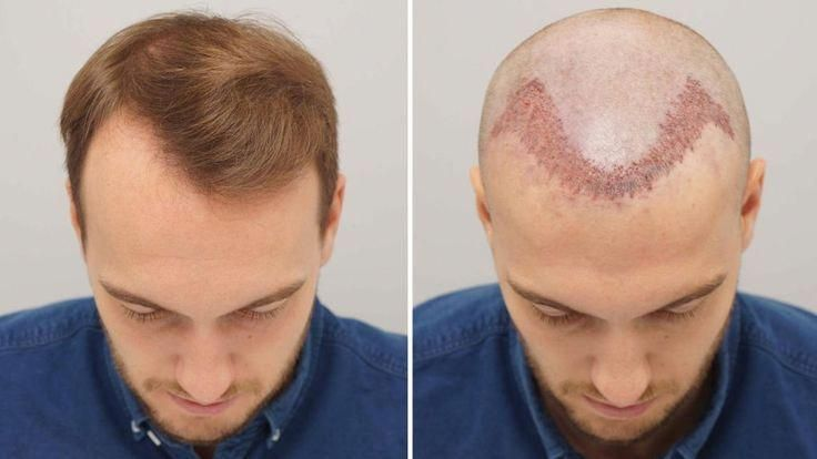 Hair Transplantation Is A Surgical Technique That Removes Hair Follicles From One Part Of The Body C Best Hair Transplant Hair Transplant Hair Transplant Cost
