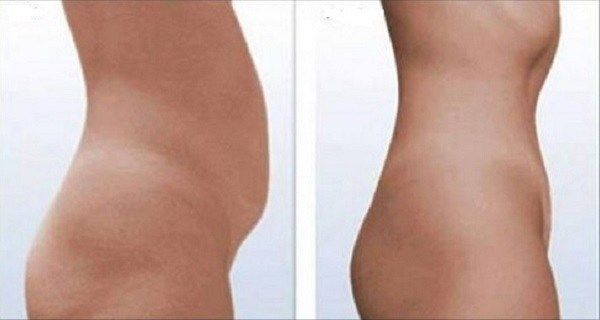 You-can-say-goodbye-to-the-abdominal-fat-in-just-2-weeks-with-this-homemade-remedy