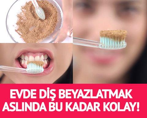 Aslında evde diş beyazlatmak bu kadar kolay! İşte en kolay ve en etkili yöntem..!