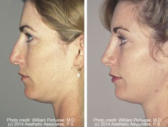 56 Best Images About Dorsal Hump Removal On Pinterest