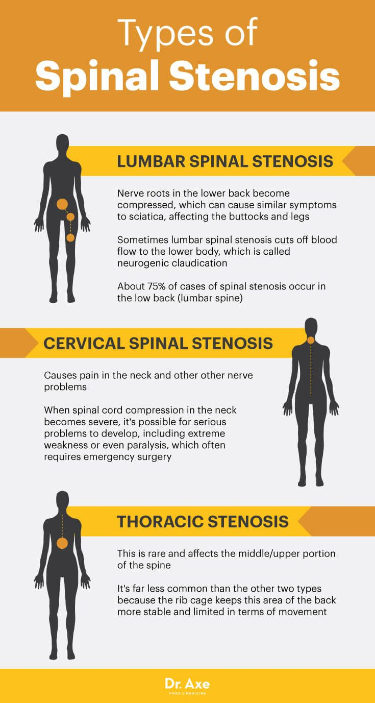 Types of spinal stenosis - Dr. Axe http://www.draxe.com #health #holistic #natural
