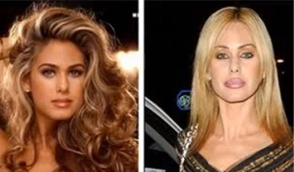 17 Celebrity Before-And-After Plastic Surgery Disasters - Business ... Former Playboy playmate Shauna Sand